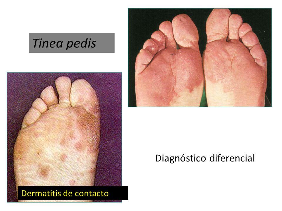 Dermatitis de contacto Tinea pedis Diagnóstico diferencial