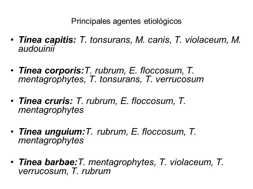 Principales agentes etiológicos Tinea capitis: T. tonsurans, M. canis, T. violaceum, M. audouinii Tinea corporis:T. rubrum, E. floccosum, T. mentagrop