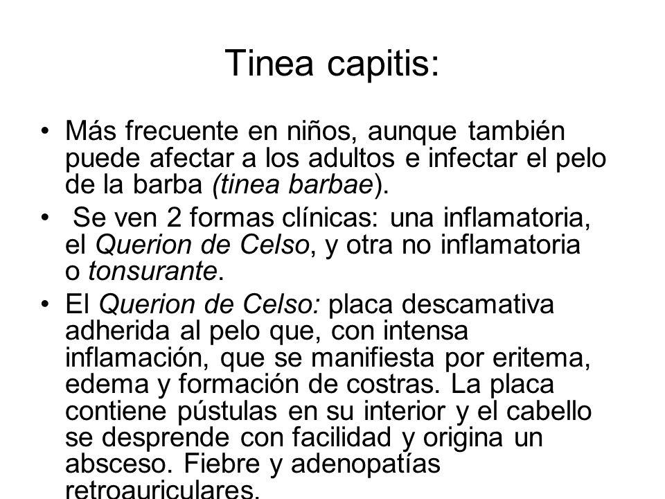 Tinea capitis: Más frecuente en niños, aunque también puede afectar a los adultos e infectar el pelo de la barba (tinea barbae). Se ven 2 formas clíni