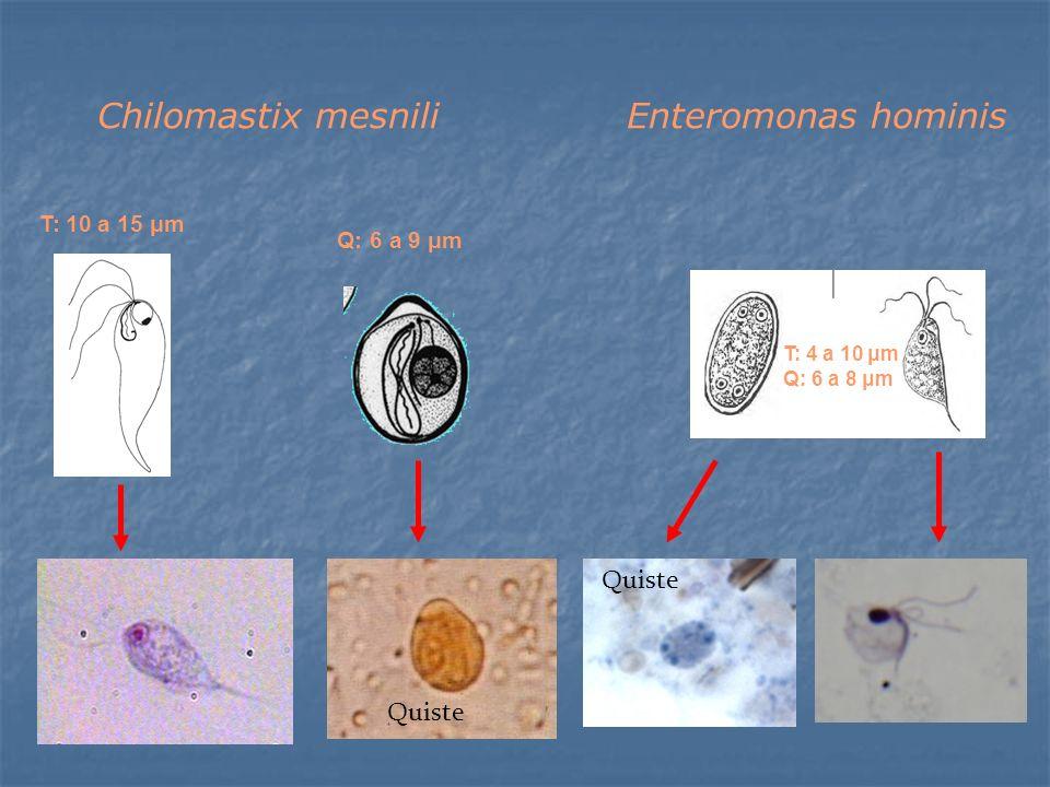 Quiste T: 4 a 10 μm Q: 6 a 8 μm T: 10 a 15 μm Q: 6 a 9 μm Chilomastix mesniliEnteromonas hominis