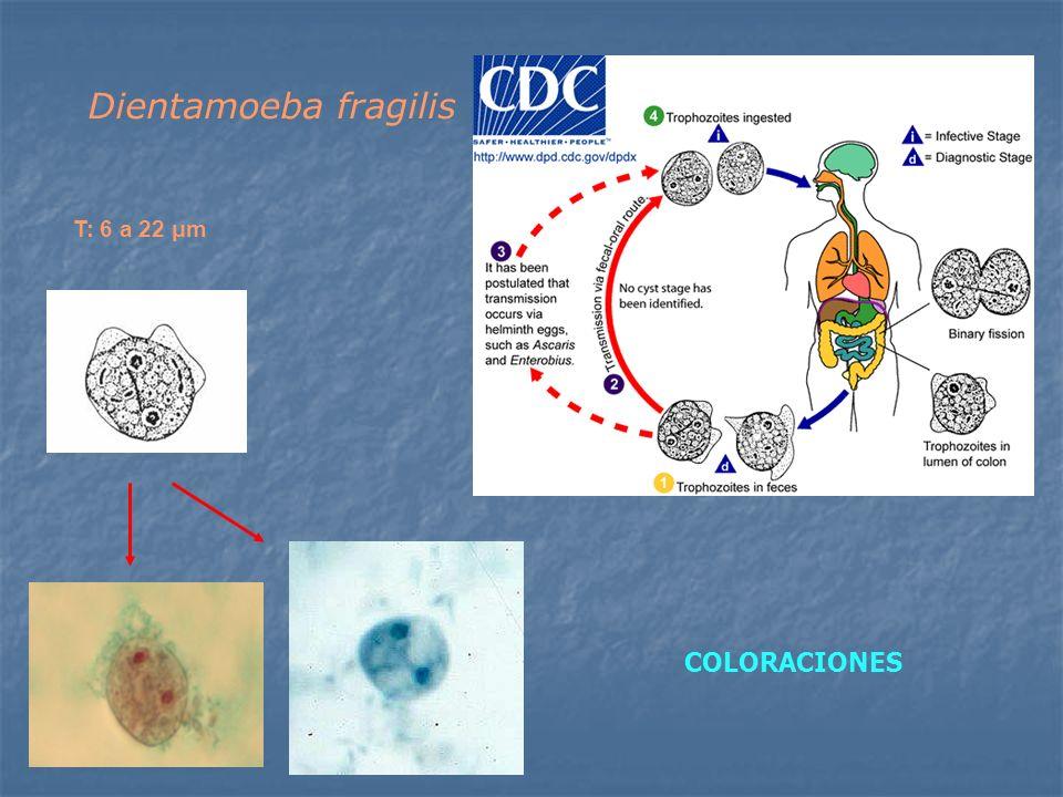 T: 6 a 22 μm Dientamoeba fragilis COLORACIONES