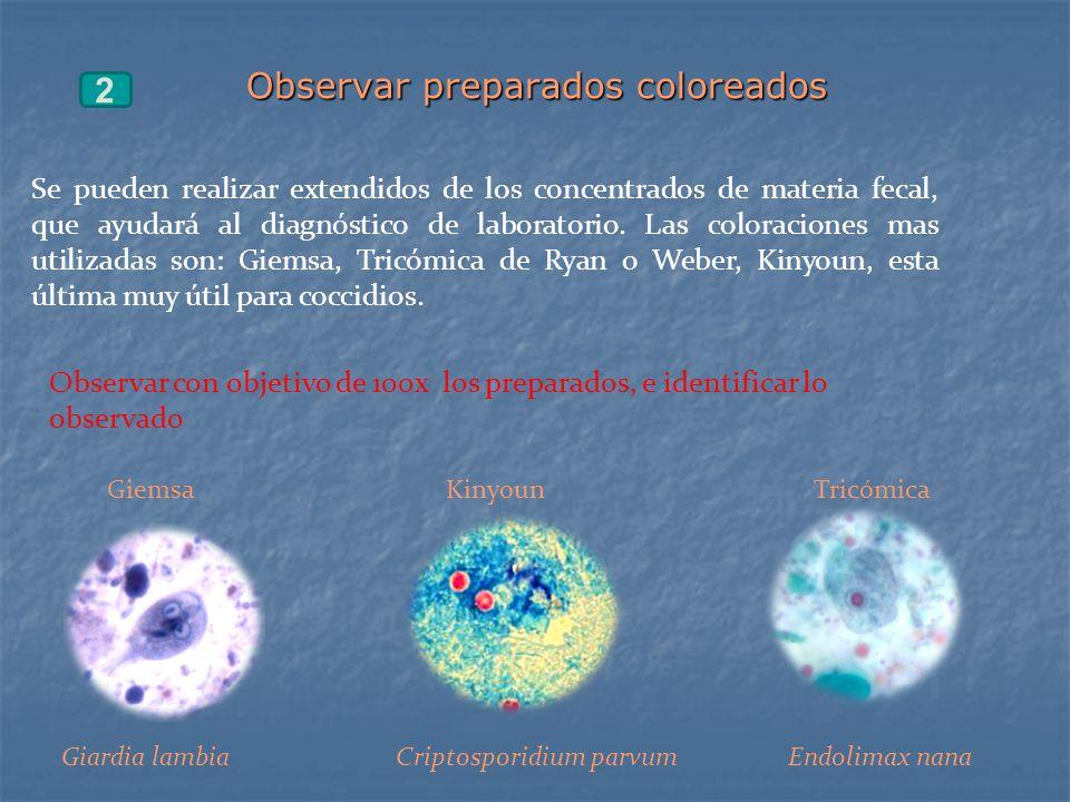 Observar preparados coloreados 2 Se pueden realizar extendidos de los concentrados de materia fecal, que ayudará al diagnóstico de laboratorio. Las co