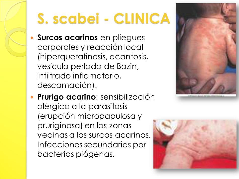 S. scabei - CLINICA Surcos acarinos en pliegues corporales y reacción local (hiperqueratinosis, acantosis, vesícula perlada de Bazin, infiltrado infla