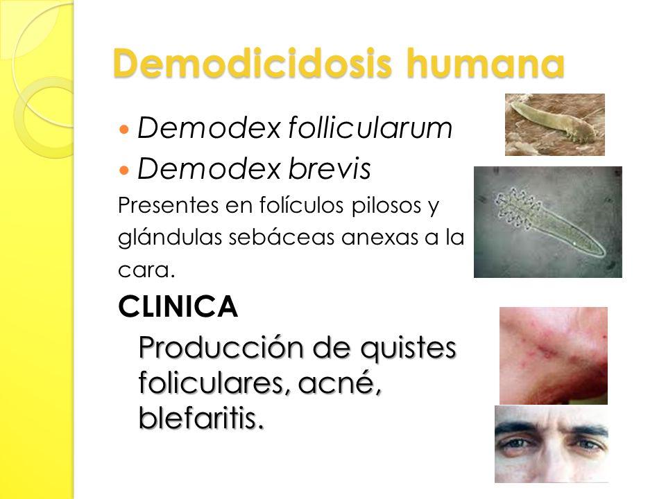 Demodicidosis humana Demodex follicularum Demodex brevis Presentes en folículos pilosos y glándulas sebáceas anexas a la cara.