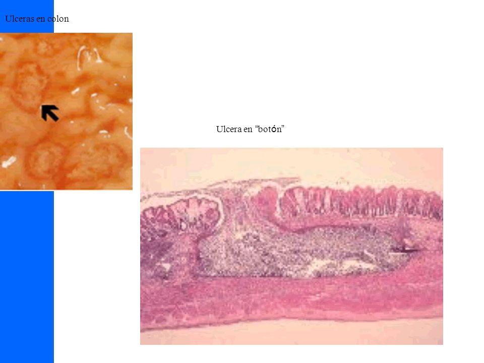 Ulceras en colon Ulcera en bot ó n