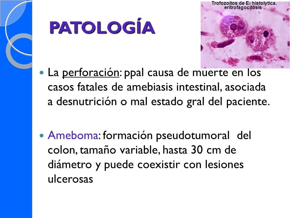 PATOLOGÍA La perforación: ppal causa de muerte en los casos fatales de amebiasis intestinal, asociada a desnutrición o mal estado gral del paciente. A