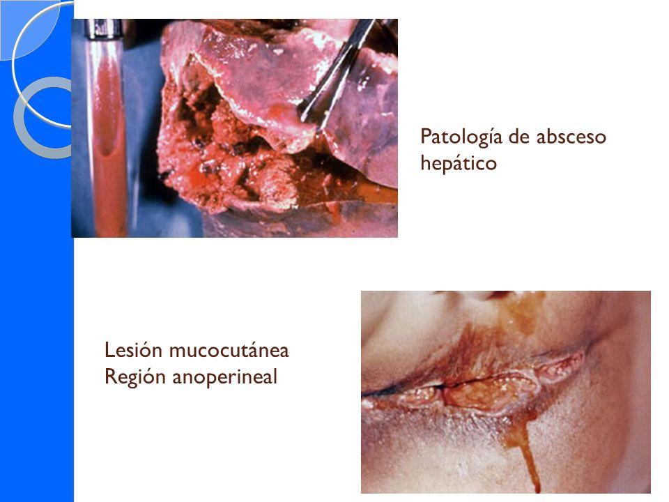 Patología de absceso hepático Lesión mucocutánea Región anoperineal