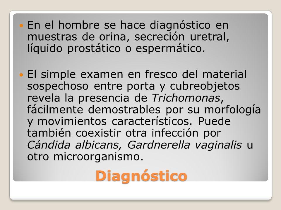Diagnóstico En el hombre se hace diagnóstico en muestras de orina, secreción uretral, líquido prostático o espermático. El simple examen en fresco del