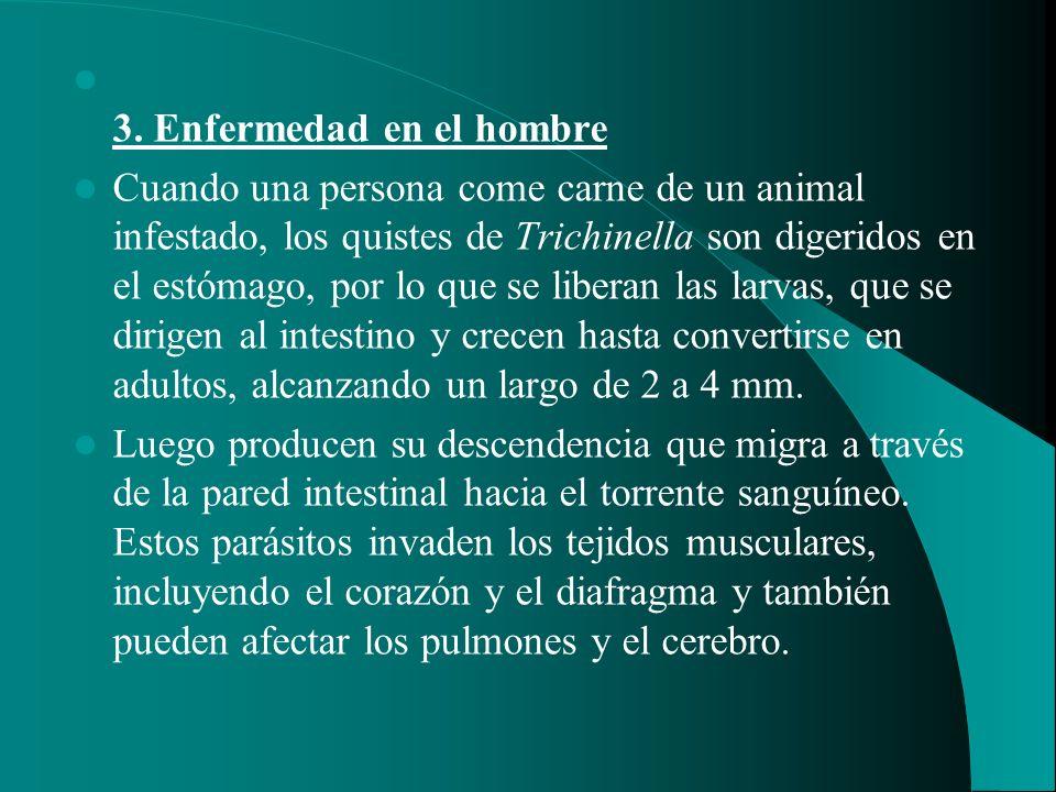 3. Enfermedad en el hombre Cuando una persona come carne de un animal infestado, los quistes de Trichinella son digeridos en el estómago, por lo que s