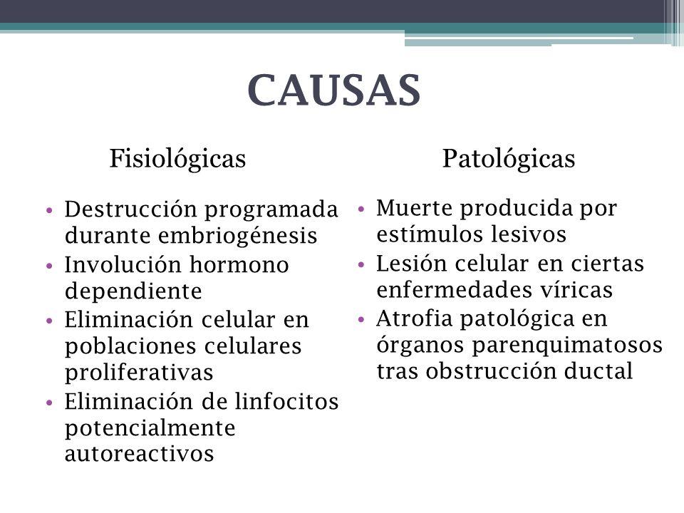 CAUSAS Muerte producida por estímulos lesivos Lesión celular en ciertas enfermedades víricas Atrofia patológica en órganos parenquimatosos tras obstru