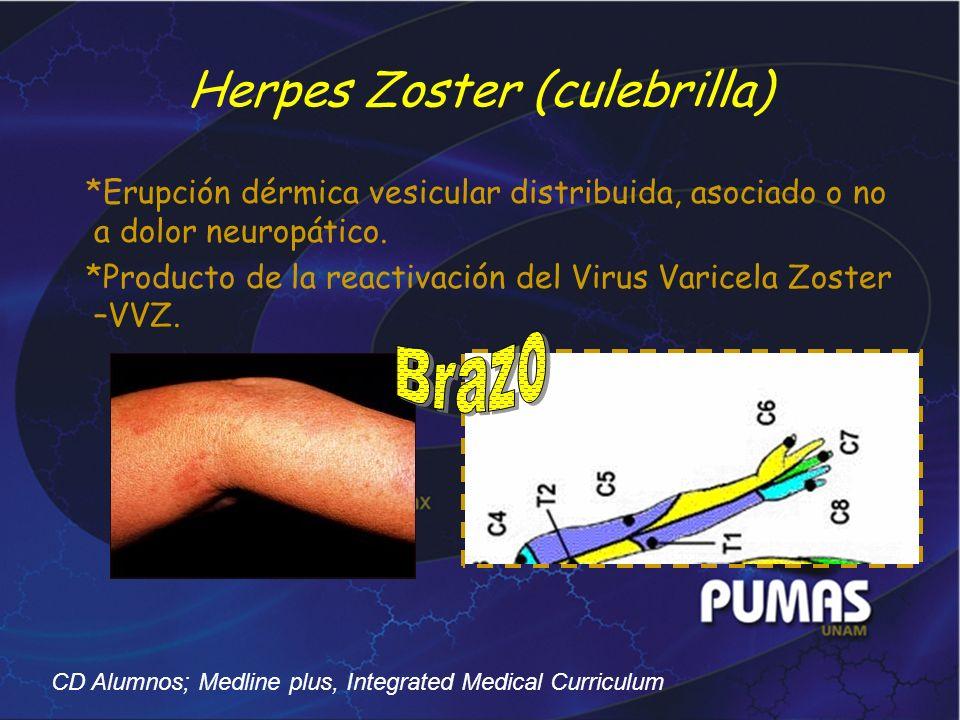 Herpes Zoster (culebrilla) *Erupción dérmica vesicular distribuida, asociado o no a dolor neuropático. *Producto de la reactivación del Virus Varicela