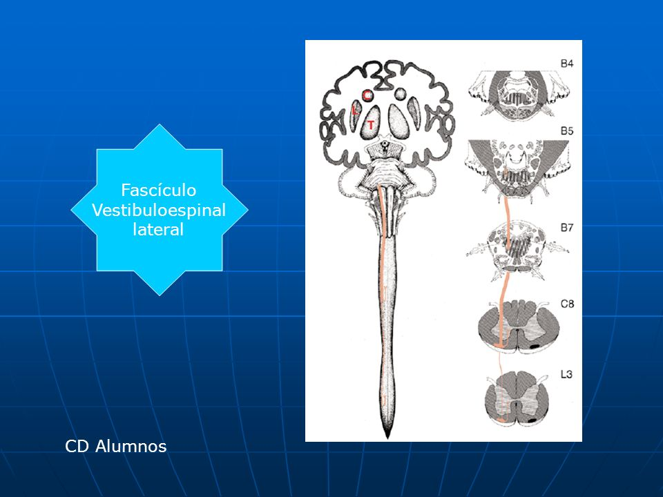 Fascículo Vestibuloespinal lateral CD Alumnos