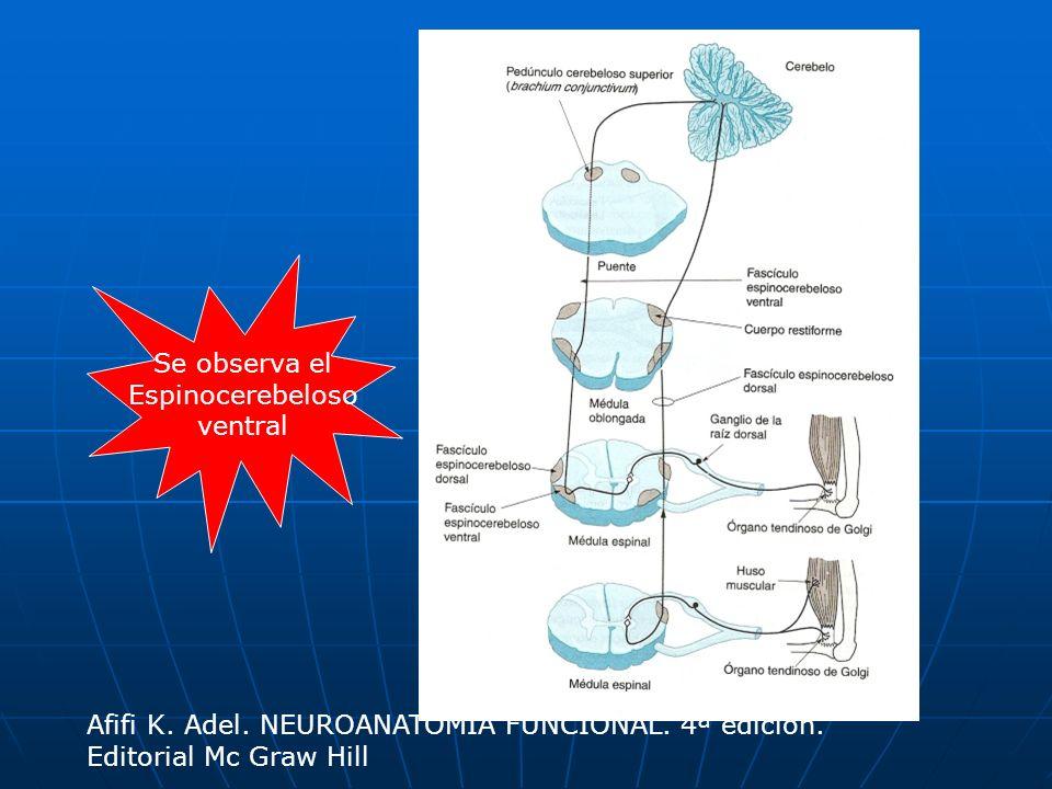 Se observa el Espinocerebeloso ventral Afifi K. Adel. NEUROANATOMIA FUNCIONAL. 4ª edición. Editorial Mc Graw Hill