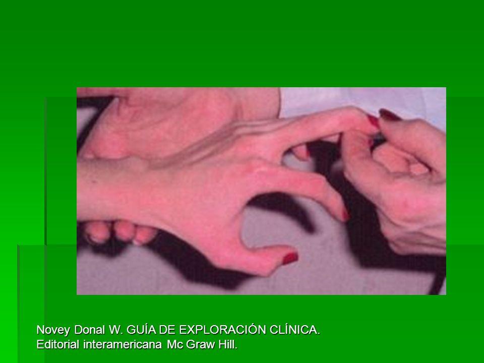 Novey Donal W. GUÍA DE EXPLORACIÓN CLÍNICA. Editorial interamericana Mc Graw Hill.