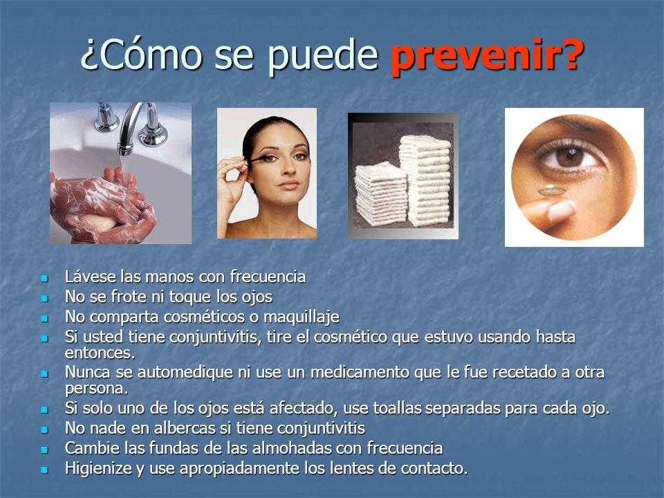 ¿Cómo se puede prevenir? Lávese las manos con frecuencia Lávese las manos con frecuencia No se frote ni toque los ojos No se frote ni toque los ojos N