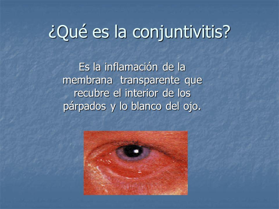 ¿Qué es la conjuntivitis? Es la inflamación de la membrana transparente que recubre el interior de los párpados y lo blanco del ojo.