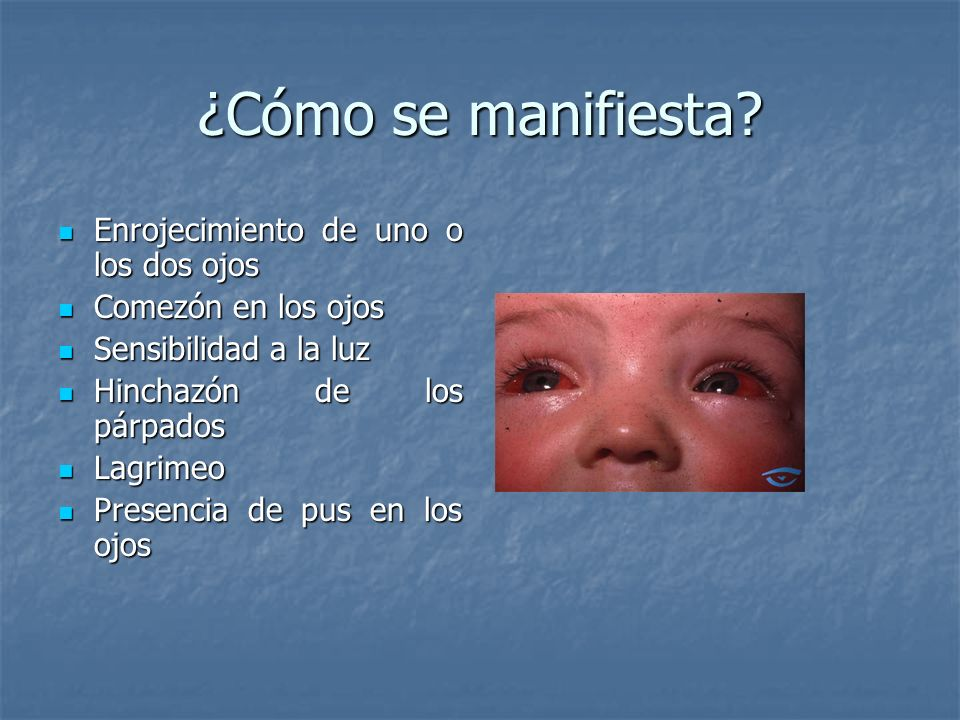 ¿Cómo se manifiesta? Enrojecimiento de uno o los dos ojos Enrojecimiento de uno o los dos ojos Comezón en los ojos Comezón en los ojos Sensibilidad a