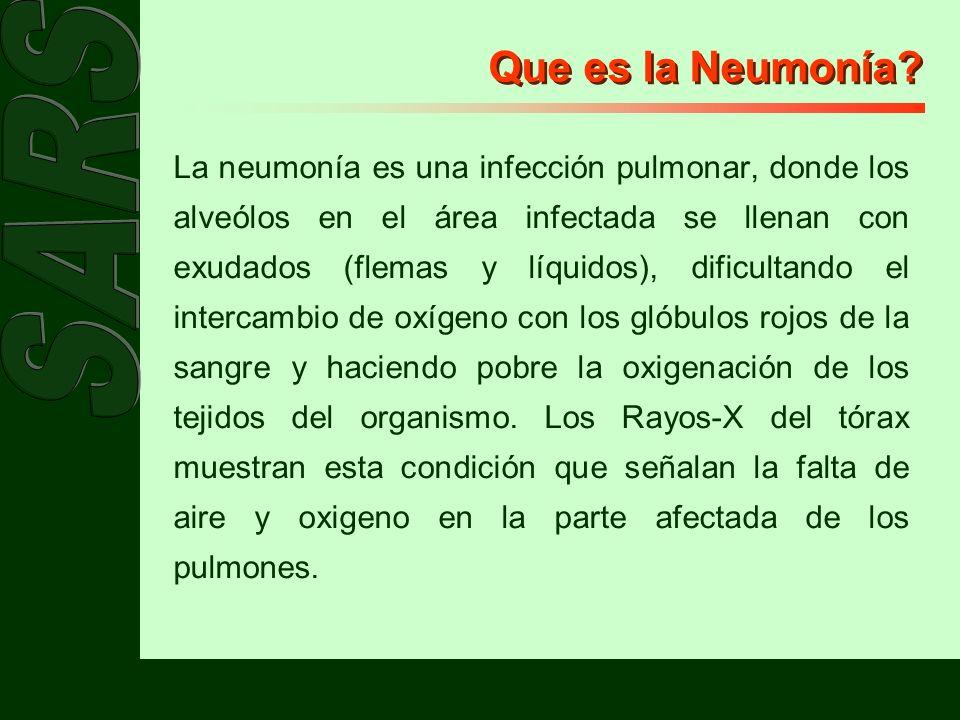 Que es la Neumonía? La neumonía es una infección pulmonar, donde los alveólos en el área infectada se llenan con exudados (flemas y líquidos), dificul