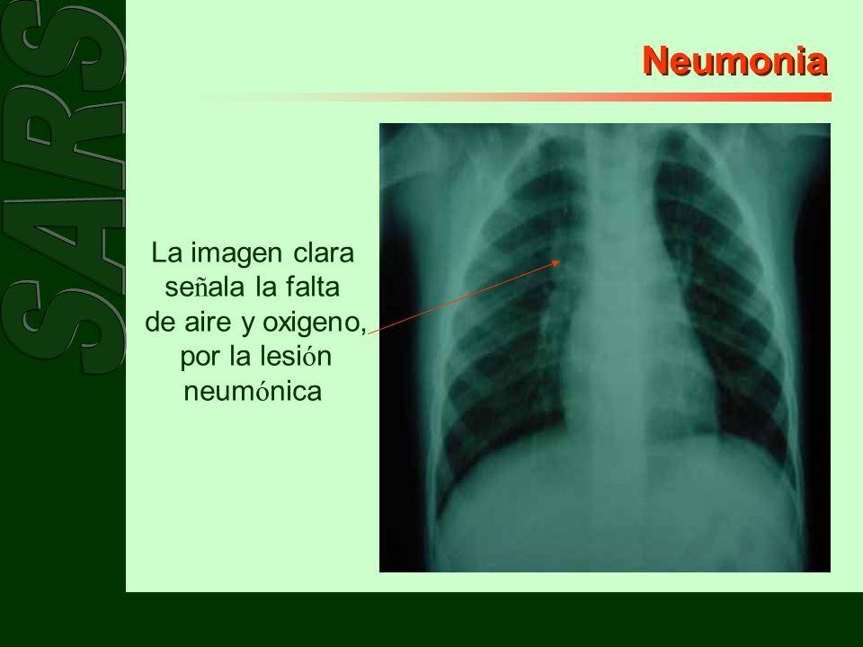 Neumonia La imagen clara se ñ ala la falta de aire y oxigeno, por la lesi ó n neum ó nica