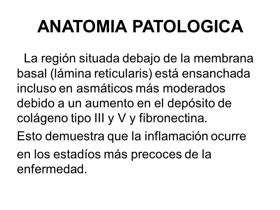 ANATOMIA PATOLOGICA La región situada debajo de la membrana basal (lámina reticularis) está ensanchada incluso en asmáticos más moderados debido a un aumento en el depósito de colágeno tipo III y V y fibronectina.