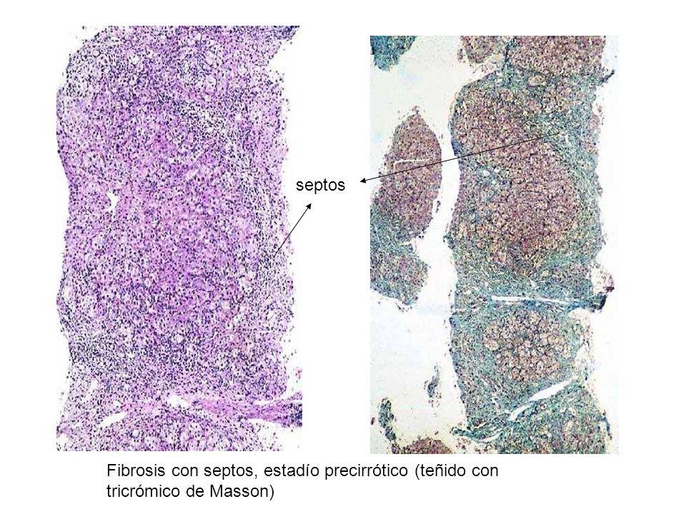 Fibrosis con septos, estadío precirrótico (teñido con tricrómico de Masson) septos