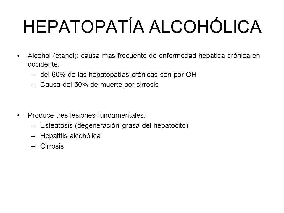 Alcohol (etanol): causa más frecuente de enfermedad hepática crónica en occidente: –del 60% de las hepatopatías crónicas son por OH –Causa del 50% de