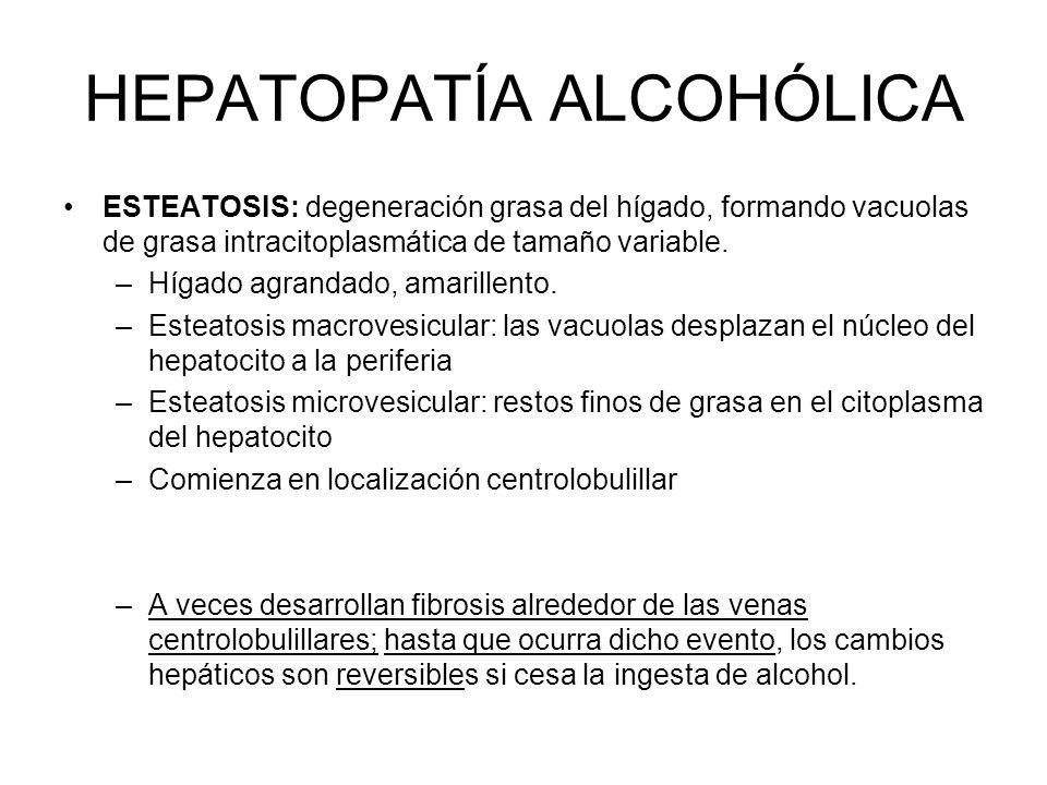 HEPATOPATÍA ALCOHÓLICA ESTEATOSIS: degeneración grasa del hígado, formando vacuolas de grasa intracitoplasmática de tamaño variable. –Hígado agrandado
