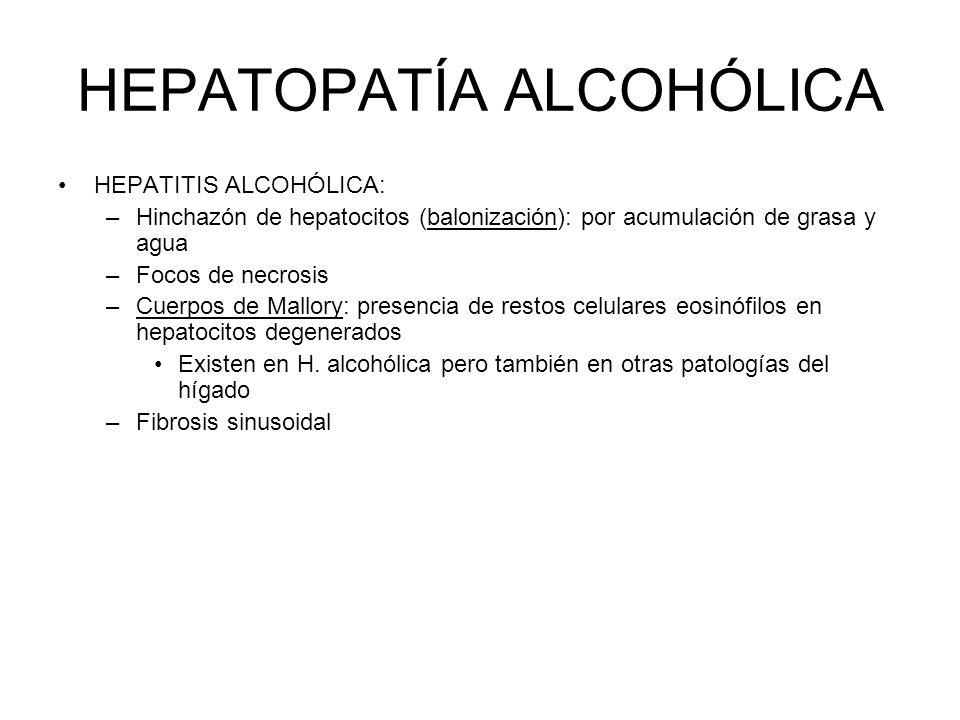 HEPATOPATÍA ALCOHÓLICA HEPATITIS ALCOHÓLICA: –Hinchazón de hepatocitos (balonización): por acumulación de grasa y agua –Focos de necrosis –Cuerpos de