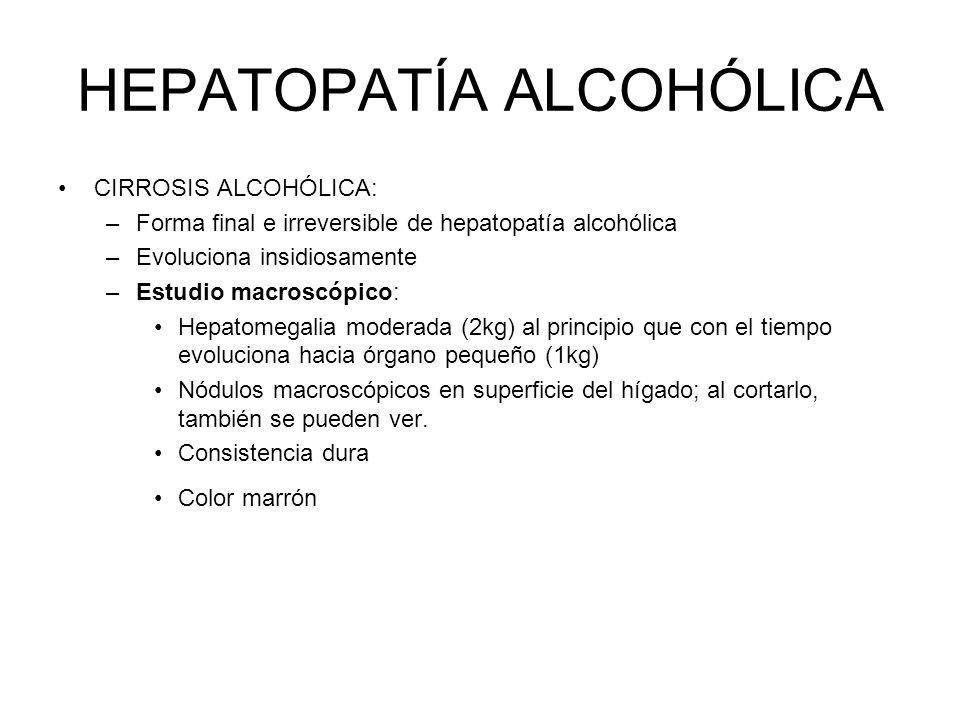 HEPATOPATÍA ALCOHÓLICA CIRROSIS ALCOHÓLICA: –Forma final e irreversible de hepatopatía alcohólica –Evoluciona insidiosamente –Estudio macroscópico: He