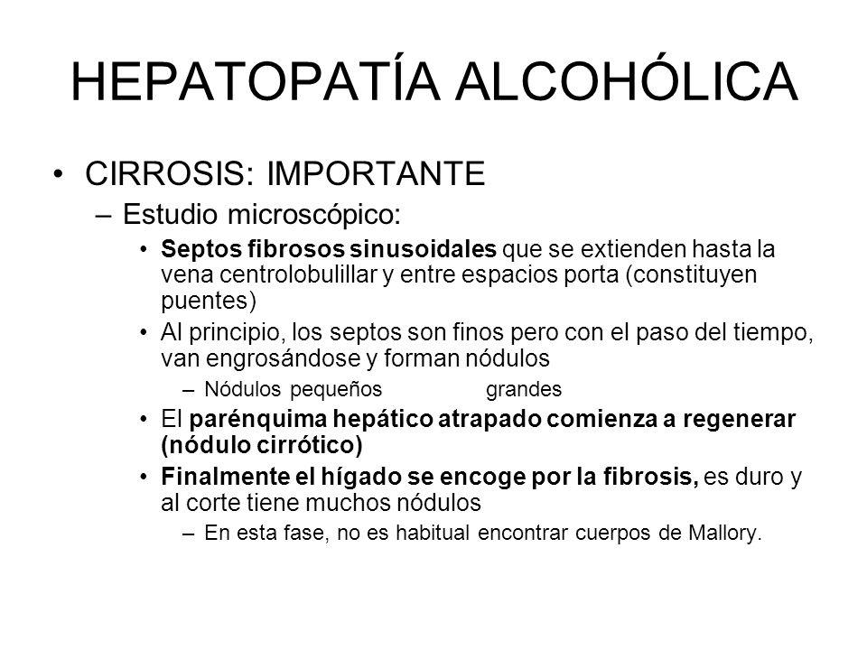 HEPATOPATÍA ALCOHÓLICA CIRROSIS: IMPORTANTE –Estudio microscópico: Septos fibrosos sinusoidales que se extienden hasta la vena centrolobulillar y entr