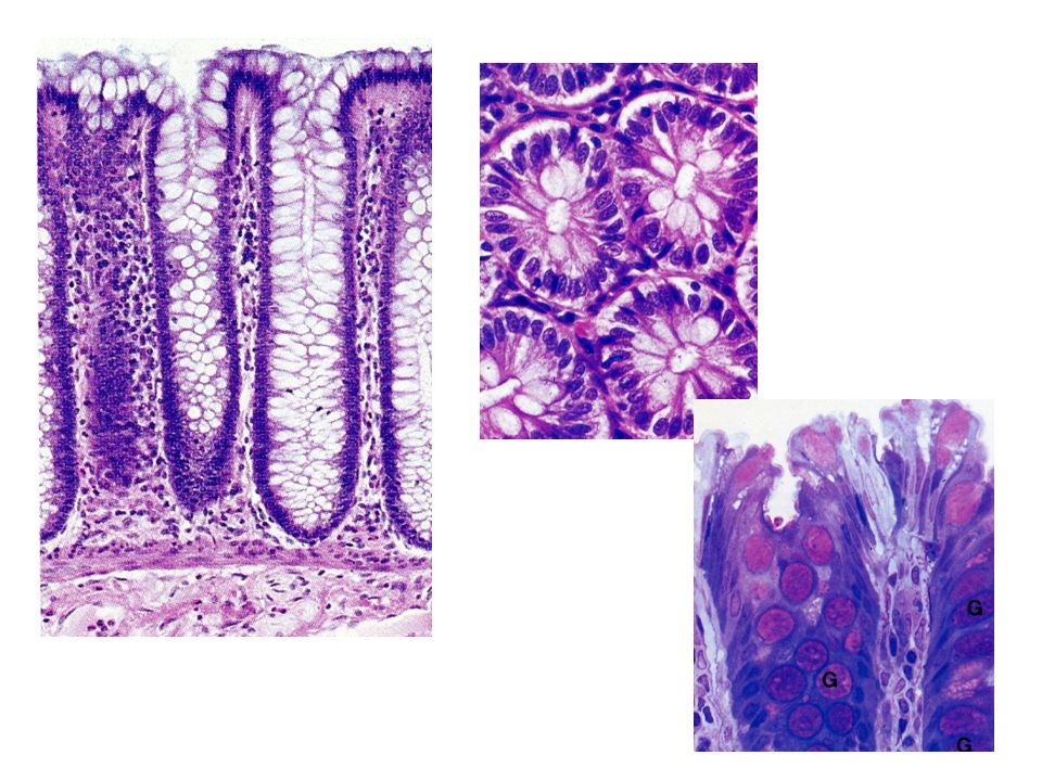 COLON: PÓLIPOS PÓLIPO: –Definición: masa que protruye hacia la luz intestinal –Se asume que inicialmente todos son pólipos SÉSILES y con el tiempo, pueden desarrollan el PEDÍCULO Origen de los pólipos: –PÓLIPOS SIN RIESGO INCREMENTADO PARA DESARROLLAR ADC: ejemplo: Alteración en la maduración de la mucosa intestinal Inflamación Alteración de la arquitectura normal de la mucosa Corresponden: –P.