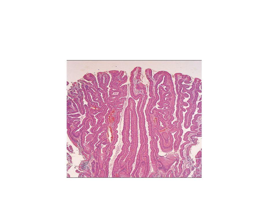 COLON: ADENOCARCINOMA COLORRECTAL 98% neoplasias colorrectales: adenocarcinomas Edad media-avanzada: 60-70 años máxima incidencia Alta tendencia a metastatizar ganglios, pulmón, hígado, hueso FACTORES DE RIESGO: –Dieta pobre en fibra, rica en carbohidratos y grasas –Polipos adenomatosos (+++) –Países occidentales: EEUU y Europa>Asia –Enfermedad inflamatoria intestinal: CU –Otros: radiación de la pelvis, etc.