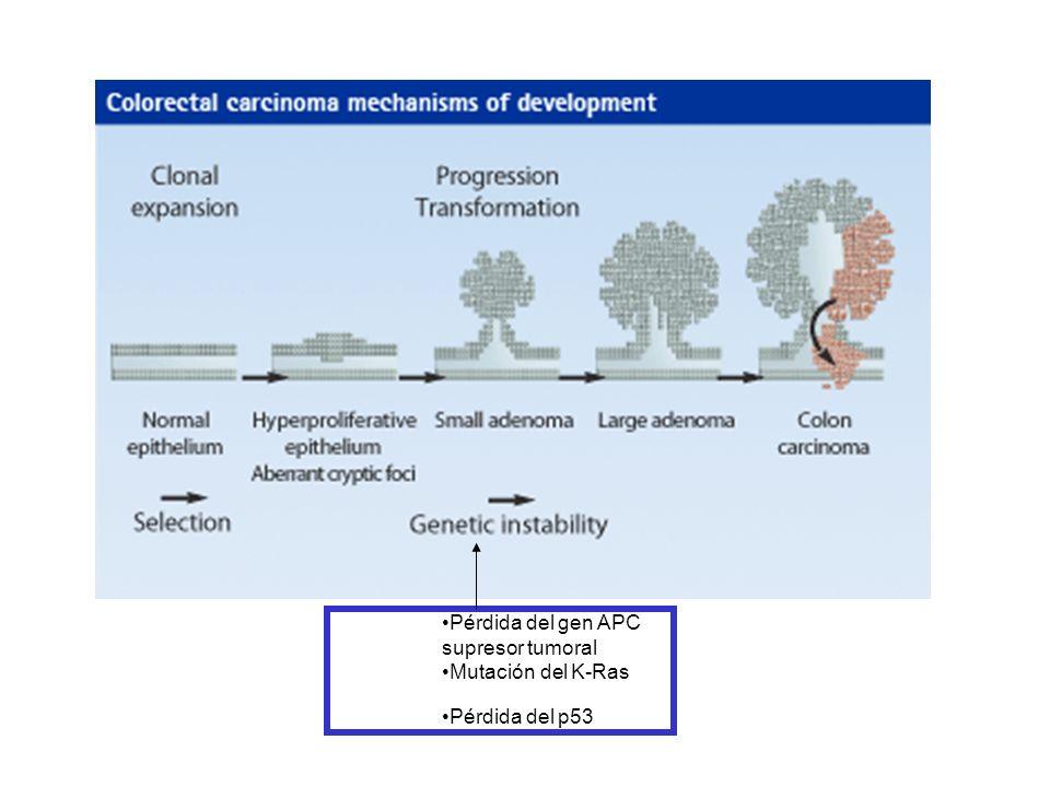 Pérdida del gen APC supresor tumoral Mutación del K-Ras Pérdida del p53