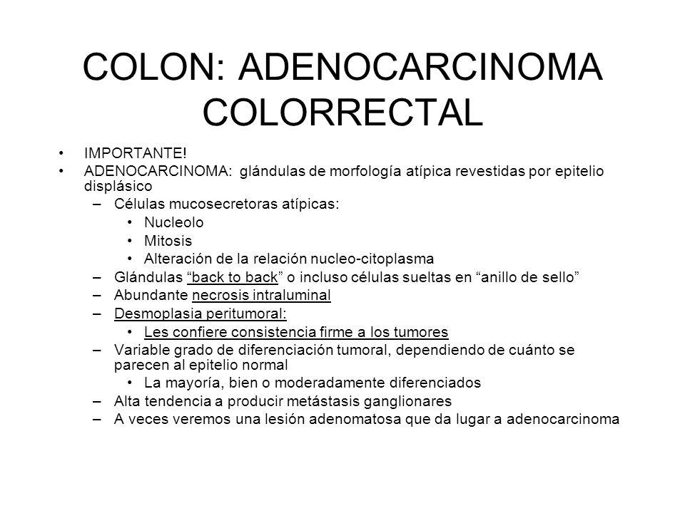 COLON: ADENOCARCINOMA COLORRECTAL IMPORTANTE! ADENOCARCINOMA: glándulas de morfología atípica revestidas por epitelio displásico –Células mucosecretor