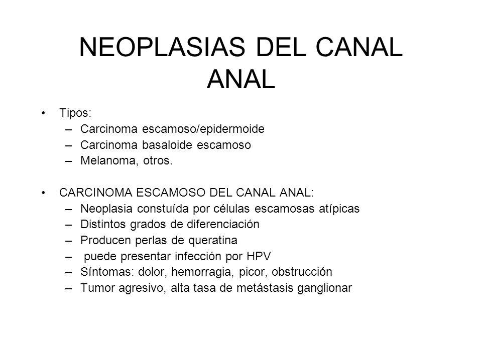 NEOPLASIAS DEL CANAL ANAL Tipos: –Carcinoma escamoso/epidermoide –Carcinoma basaloide escamoso –Melanoma, otros. CARCINOMA ESCAMOSO DEL CANAL ANAL: –N