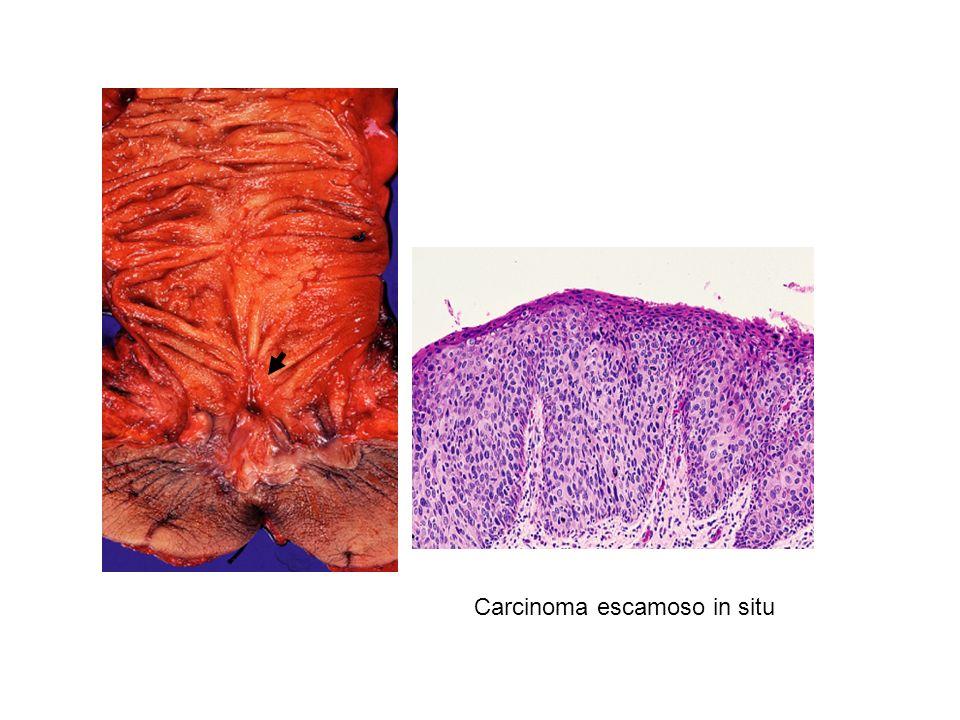 Carcinoma escamoso in situ