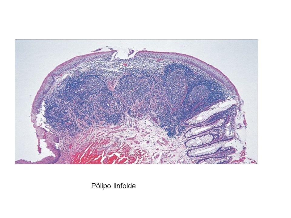 Pólipo linfoide