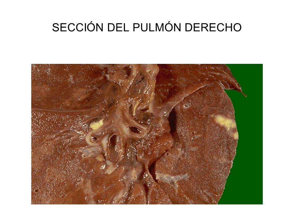 SECCIÓN DEL PULMÓN DERECHO