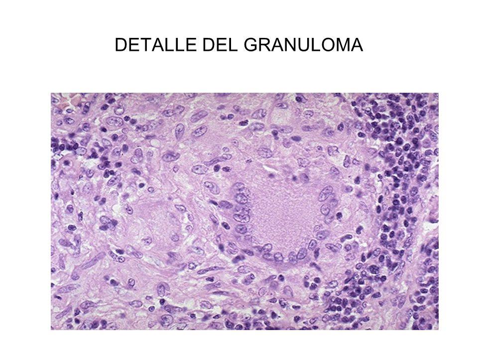 DETALLE DEL GRANULOMA