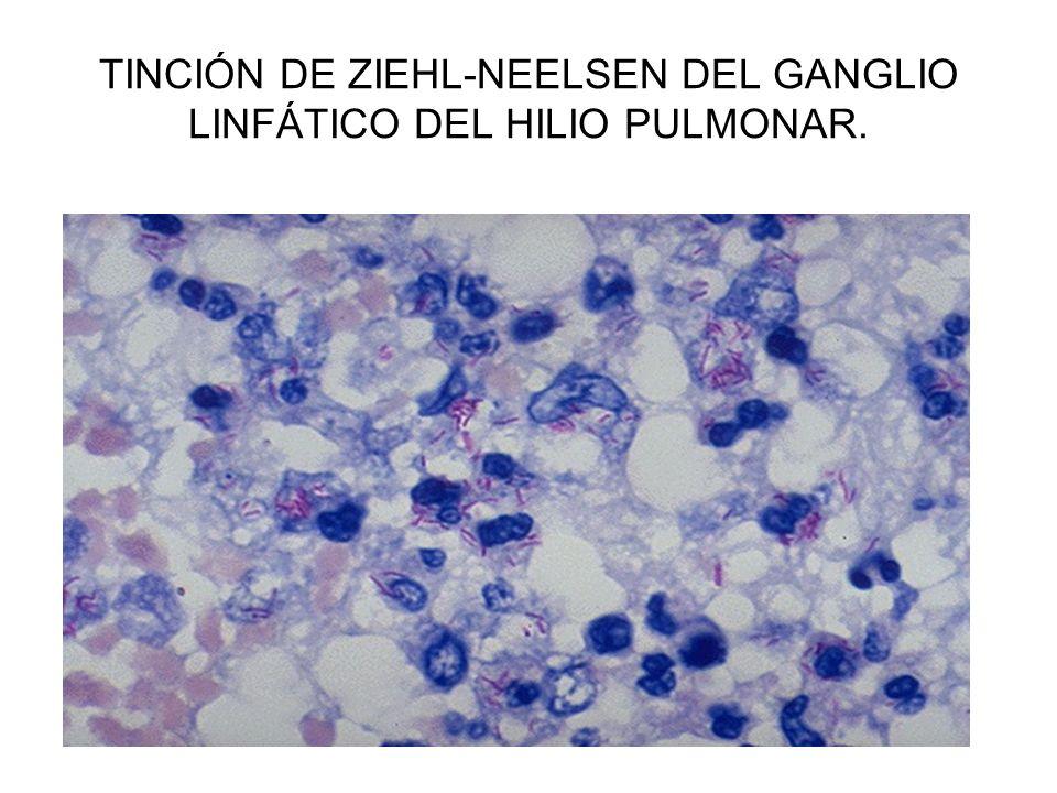 TINCIÓN DE ZIEHL-NEELSEN DEL GANGLIO LINFÁTICO DEL HILIO PULMONAR.