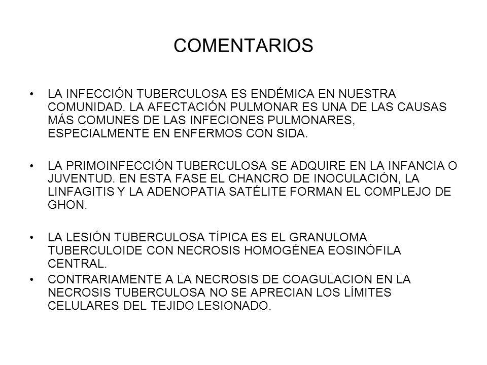 COMENTARIOS LA INFECCIÓN TUBERCULOSA ES ENDÉMICA EN NUESTRA COMUNIDAD. LA AFECTACIÓN PULMONAR ES UNA DE LAS CAUSAS MÁS COMUNES DE LAS INFECIONES PULMO