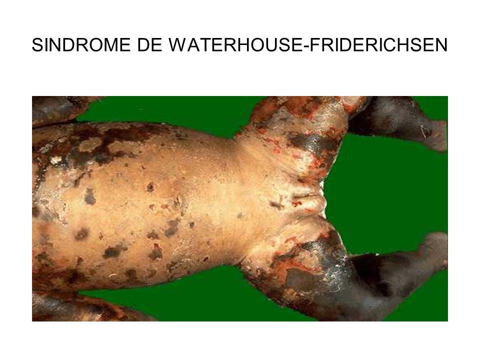 SINDROME DE WATERHOUSE-FRIDERICHSEN