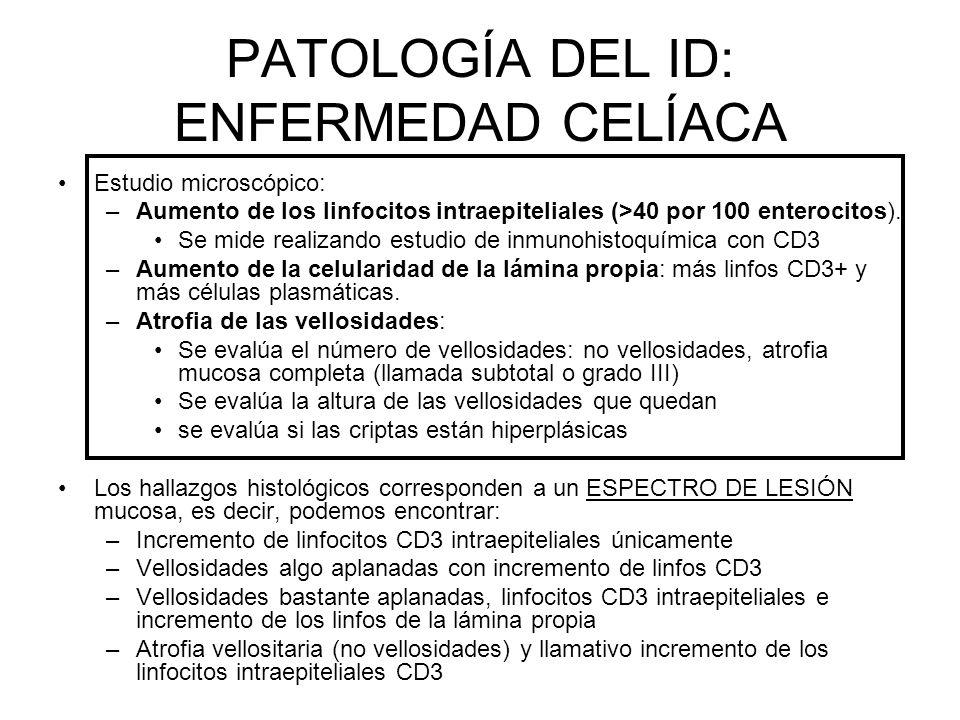 PATOLOGÍA DEL ID: ENFERMEDAD CELÍACA Estudio microscópico: –Aumento de los linfocitos intraepiteliales (>40 por 100 enterocitos). Se mide realizando e