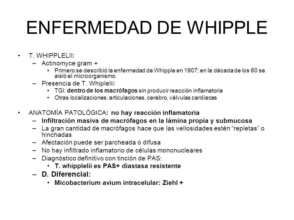 ENFERMEDAD DE WHIPPLE T. WHIPPLELII: –Actinomyce gram + Primero se describió la enfermedad de Whipple en 1907; en la década de los 60 se aisló el micr