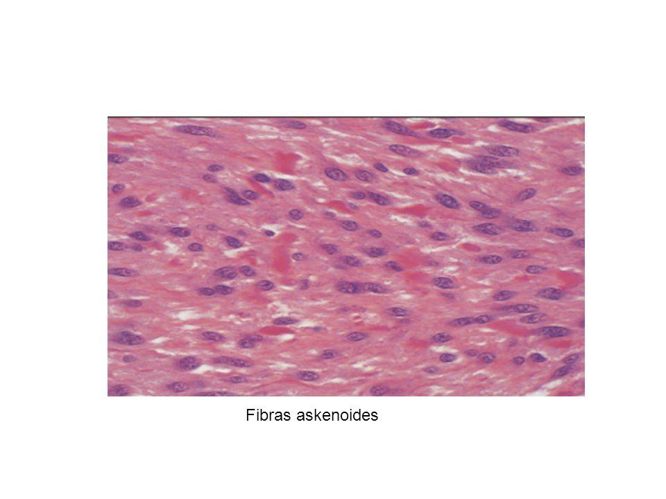 Fibras askenoides