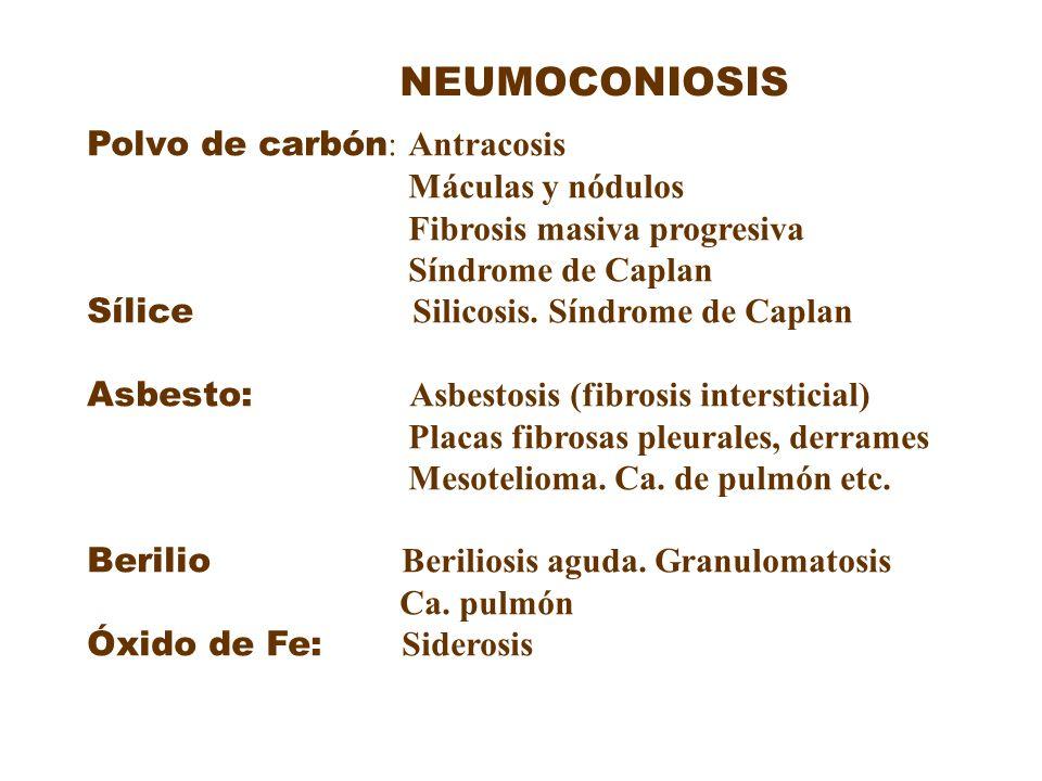 NEUMOCONIOSIS Polvo de carbón : Antracosis Máculas y nódulos Fibrosis masiva progresiva Síndrome de Caplan Sílice Silicosis. Síndrome de Caplan Asbest