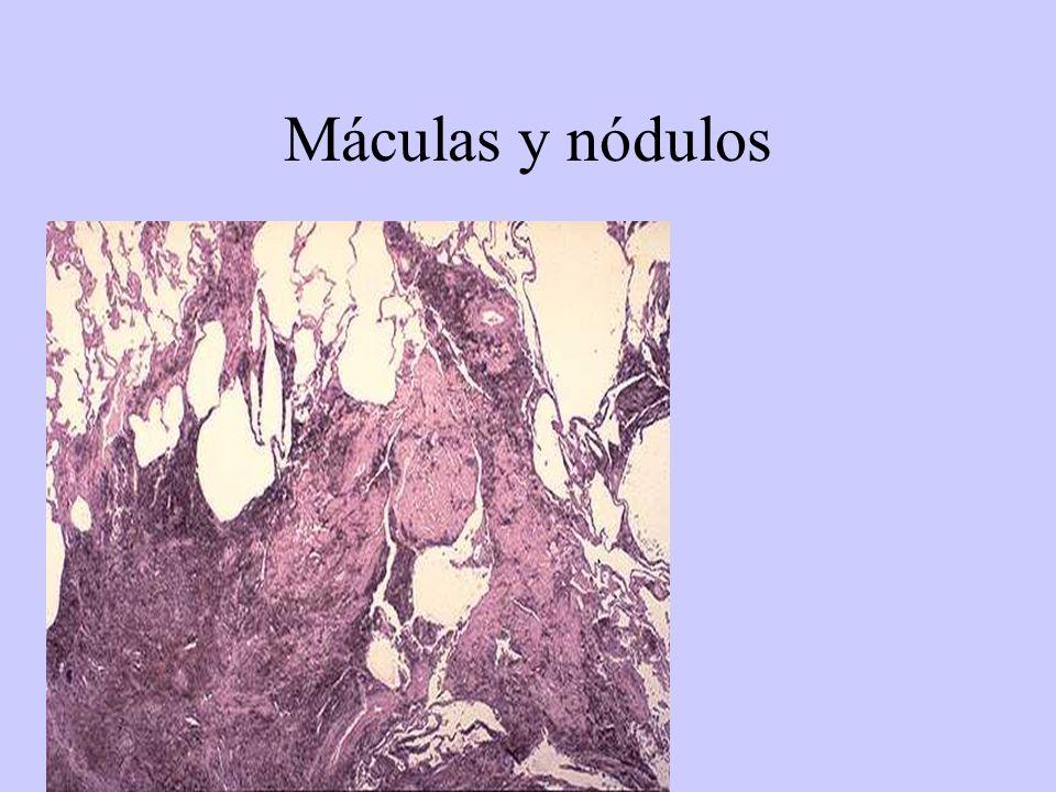Fibrosis masiva Progresiva Años de contacto Múltiples lesiones 2-10 cms: polvo de carbón+ fibrosis + cavitación.