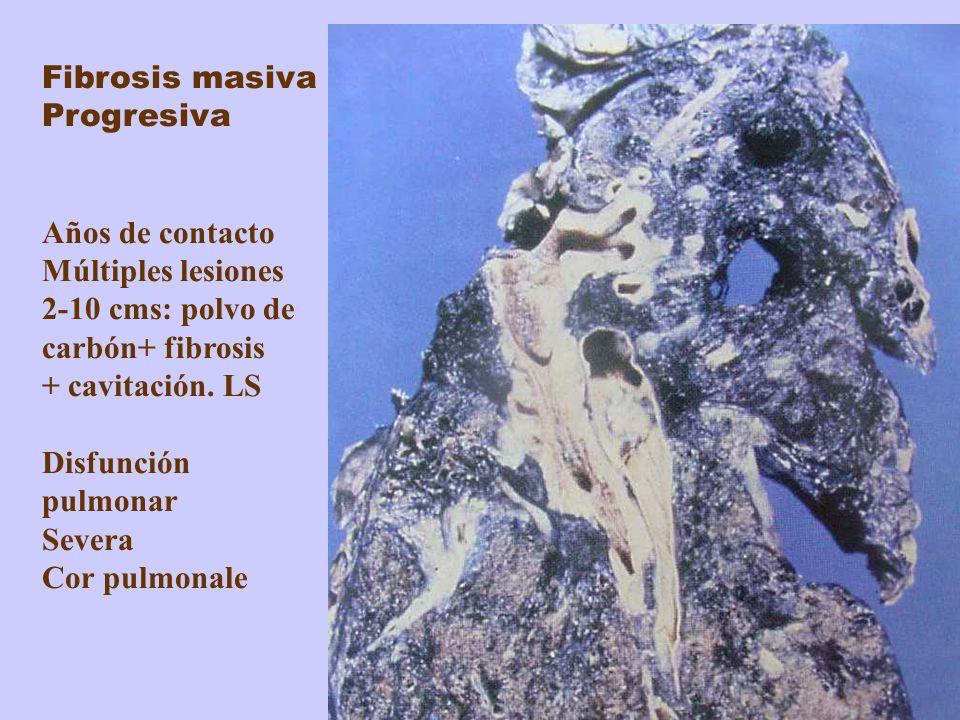 Fibrosis masiva Progresiva Años de contacto Múltiples lesiones 2-10 cms: polvo de carbón+ fibrosis + cavitación. LS Disfunción pulmonar Severa Cor pul