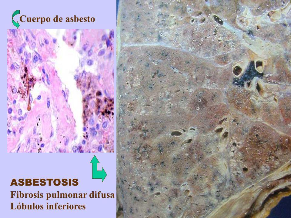 Cuerpo de asbesto ASBESTOSIS Fibrosis pulmonar difusa Lóbulos inferiores