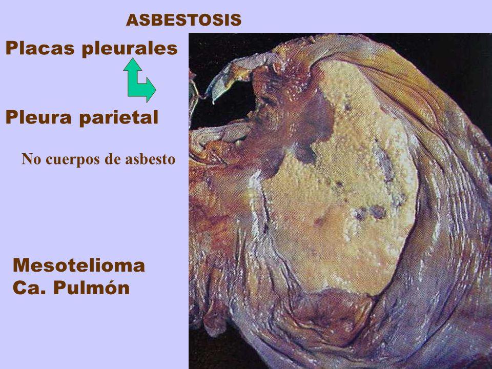Placas pleurales Pleura parietal No cuerpos de asbesto Mesotelioma Ca. Pulmón ASBESTOSIS